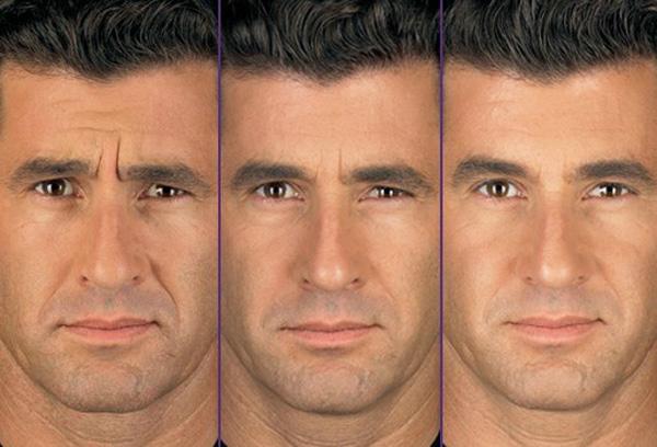 Figura 1: Resultado da aplicação do Botox®