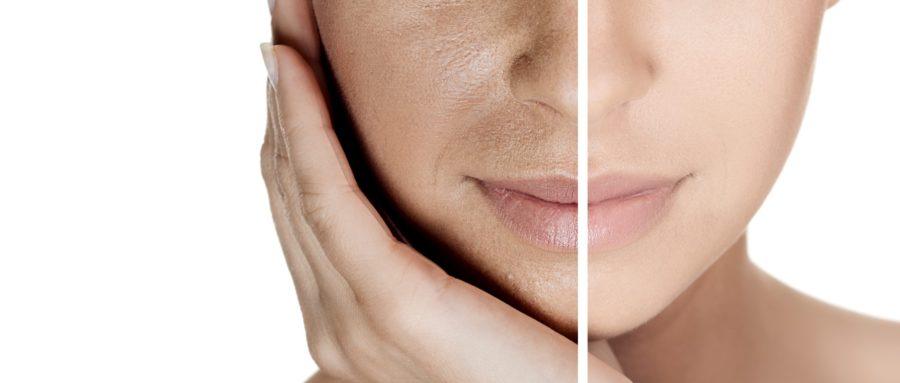 Figura 1 - Clareamento é algo visível em nossa pele